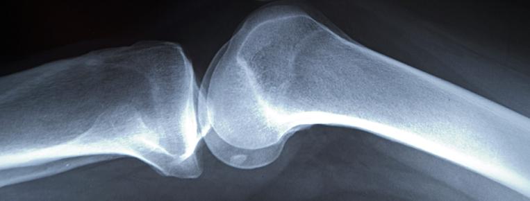 ortopedia1